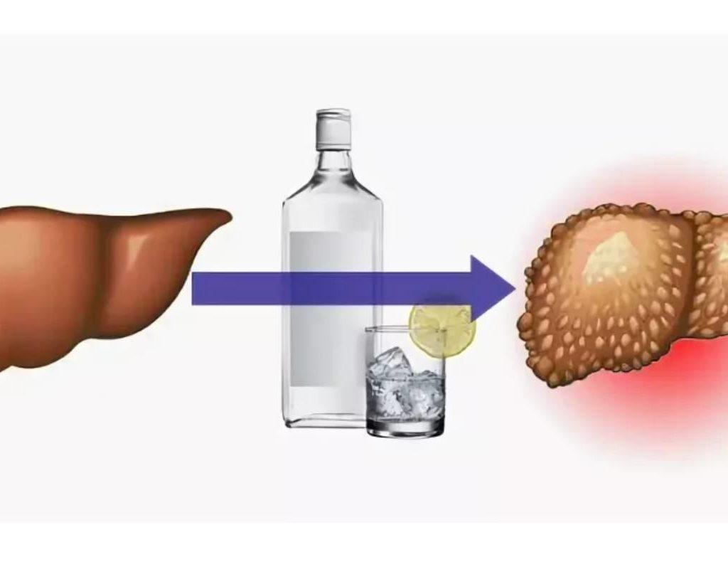 Алкоголь влияет на печень